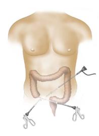 Χειρουργική οξείας σκωληκοειδίτιδας