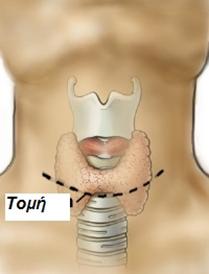 Χειρουργική θυρεοειδούς αδένα
