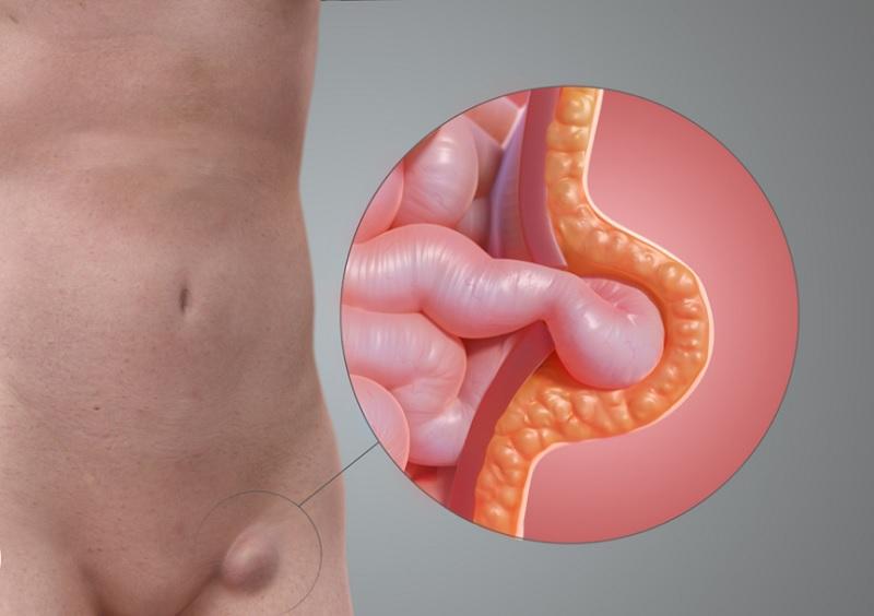 Femoral hernia
