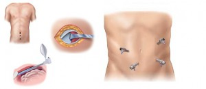 Laparoscopic treatment of hernias