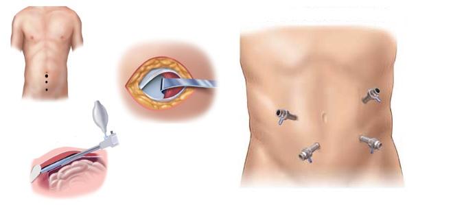 Λαπαροσκοπική χειρουργική αντιμετώπιση κηλών