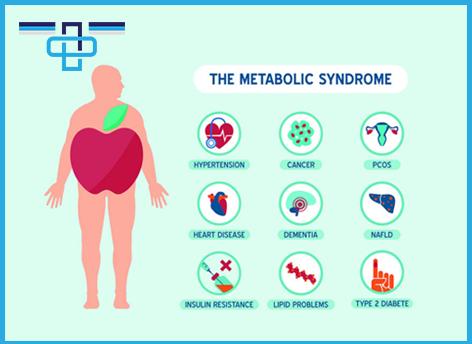 Όλα όσα πρέπει να γνωρίζετε για τοΜεταβολικό Σύνδρομο
