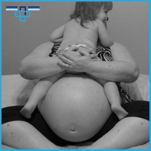 Πώς επηρεάζει η παχυσαρκία τη σύλληψη και την εγκυμοσύνη;